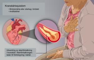 Kranskärlssjukdom, kärlkramp, angina pectoris, hjärtinfarkt, hjärtattack