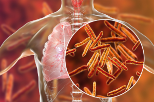 tuberkolos lungsjukdomar hosta infektion