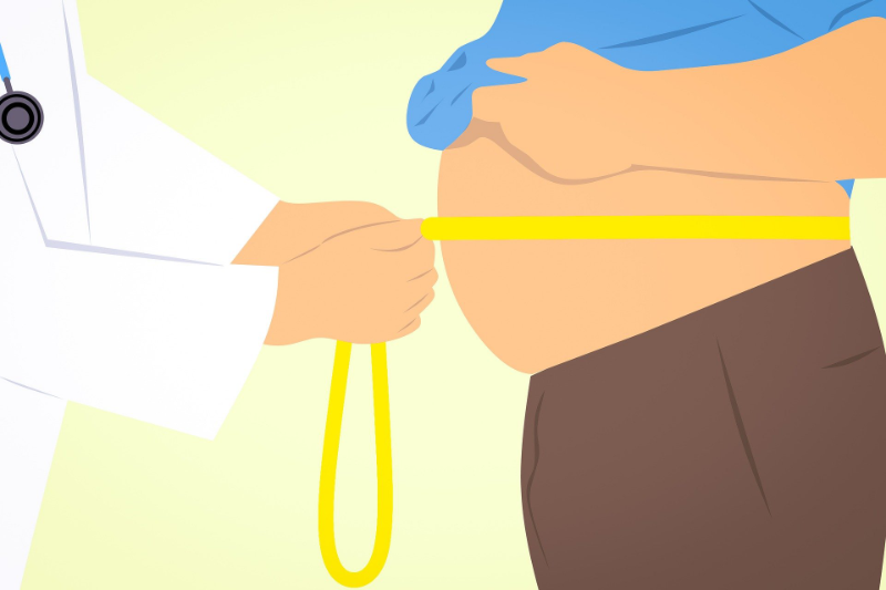viktnedgång obesitaskirurgi fetmakirurgi övervikt fetma operation