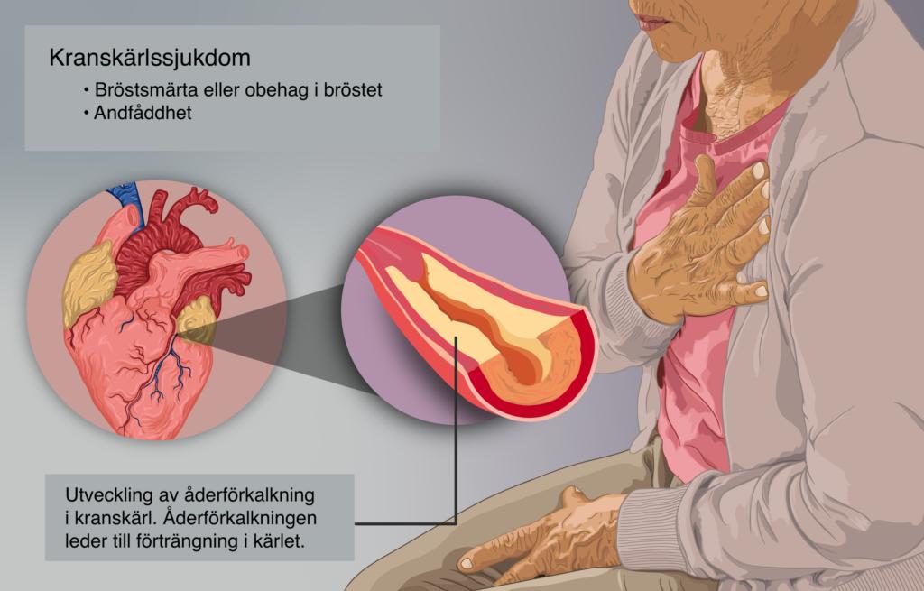 kärlkramp symtom hos kvinnor